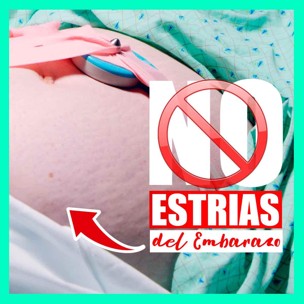 como-evitar-las-estrías-en-la-barriga-durante-embarazo